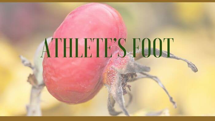 Athlete's foot herbal remedies